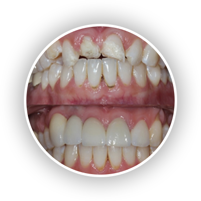 Dental Implants Recovery