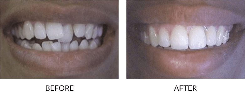 Accelerated Adult Orthodontics San Diego - before and after
