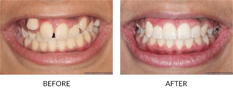 Accelerated Adult Orthodontics San Diego before and after