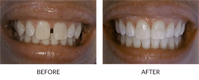 Accelerated Adult Orthodontics San Diego before and after images