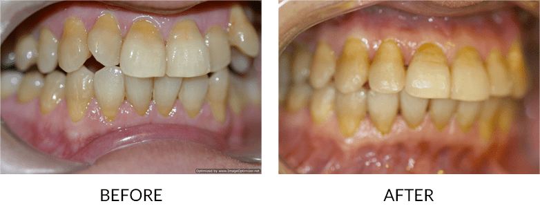 before-after_accelerated-orthodontics