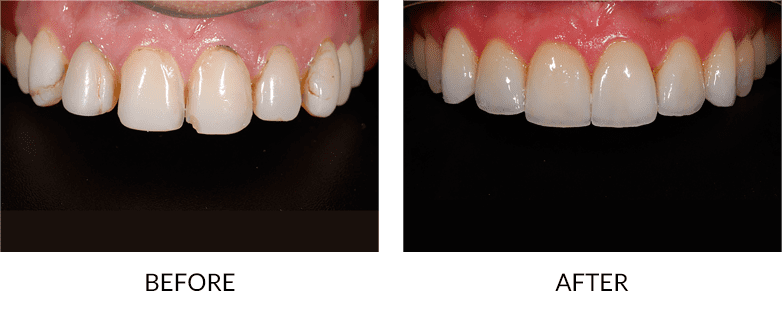 Porcelain Veneers San Diego before and after