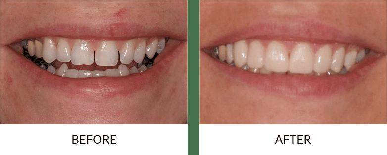 before-after_porcelain-veneers
