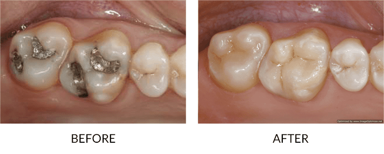 before-after_sedation-dentistry