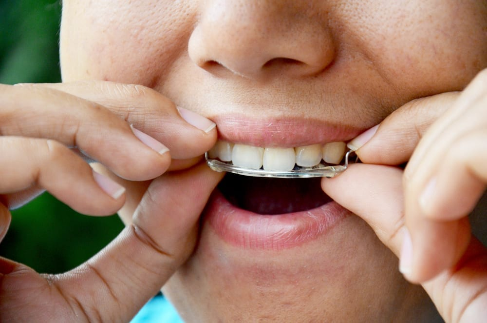 caring-for-your-smile-after-orthodontics