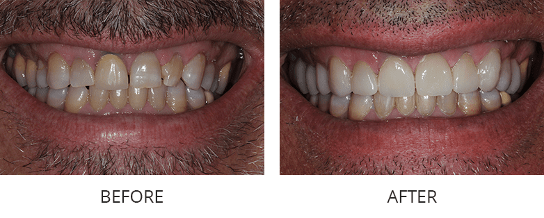 La Jolla before and after orthodontics patient