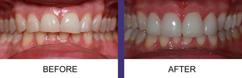 La jolla denture patient