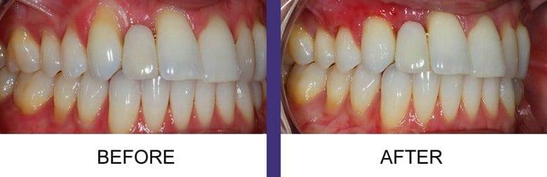 denture patient after