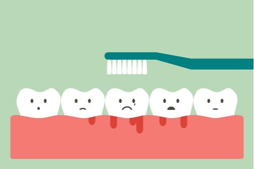 Bleeding gums is a result of poor dental hygiene care. You can take care of gum health by brushing your teeth properly.