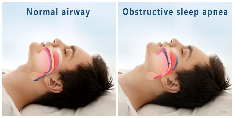 Side by side image example of what happens when a person suffers from sleep apnea.